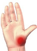 tratamentul artrozei articulației genunchiului fără intervenție chirurgicală