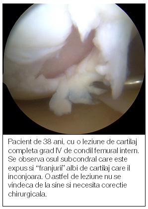 unguente osteochondroza cervicală uleiuri esențiale pentru tratamentul artrozei