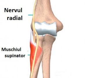 deteriorarea nervului radial în articulația cotului