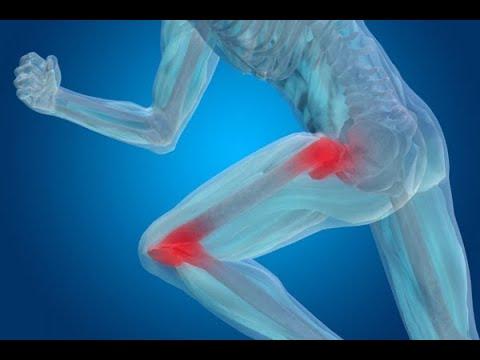 articulațiile se crăpă și genunchii doare agent antiinflamator puternic pentru articulații