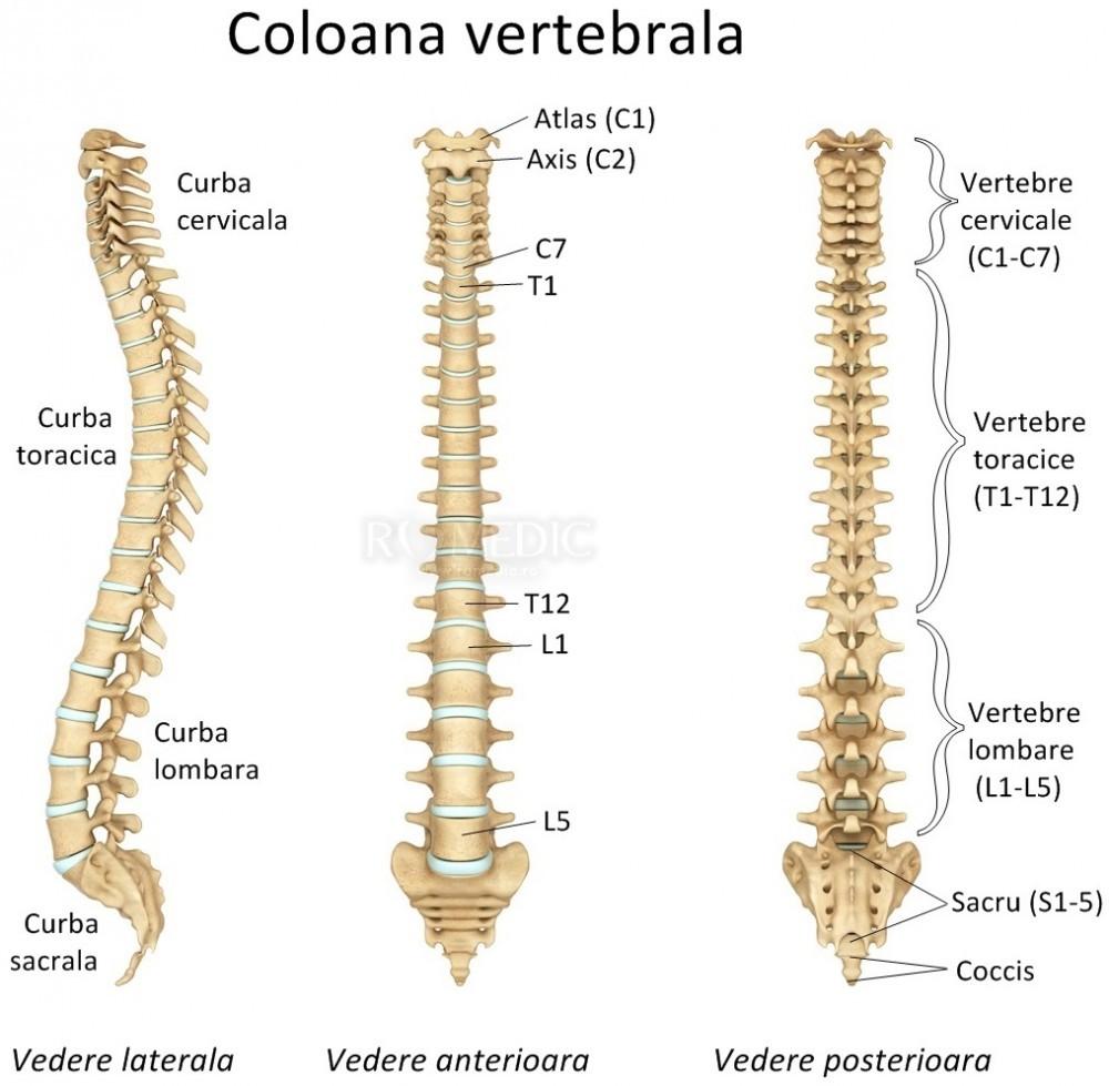 artroza vertebrala lombara)