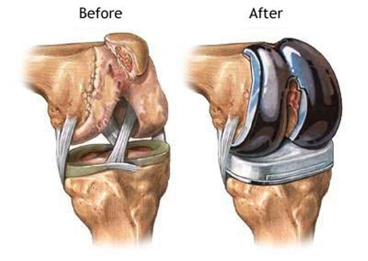 cum se tratează gonartroza genunchiului de gradul 3