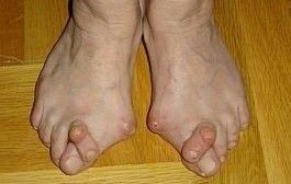 artrita articulațiilor piciorului toate articulațiile cauzează răni