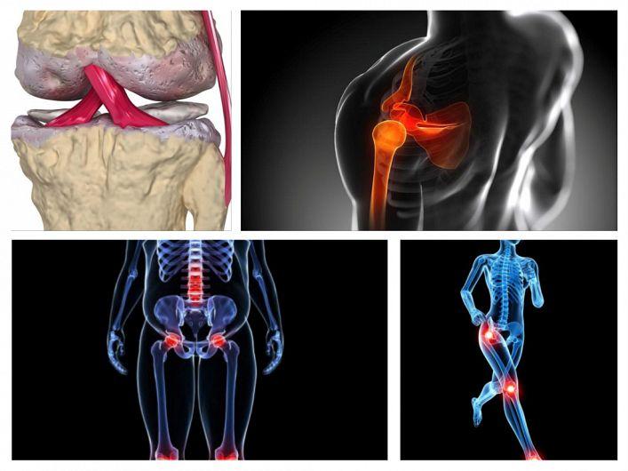 dureri rătăcitoare în articulații și coloană vertebrală tratamentul osteochondrozei și artrozei coloanei vertebrale