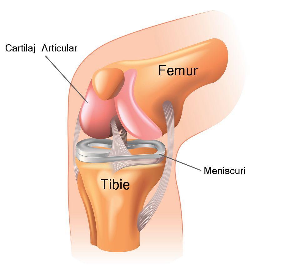 artroza posttraumatică a articulației genunchiului drept antiinflamatoare nesteroidiene pentru osteochondroza inferioară a spatelui