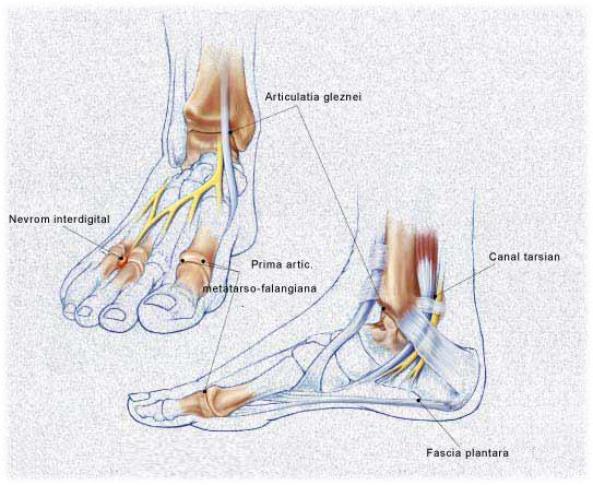 artroza tratamentului articulației gleznei ce este modul de tratare a poliartritei articulare