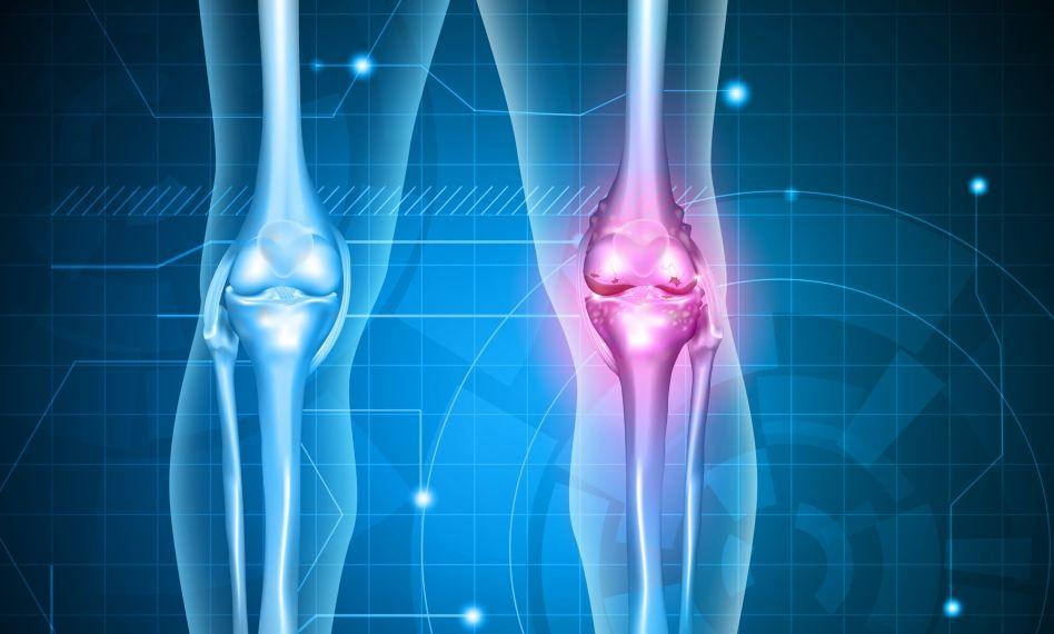 Cum se tratează artroza degetului de la picior