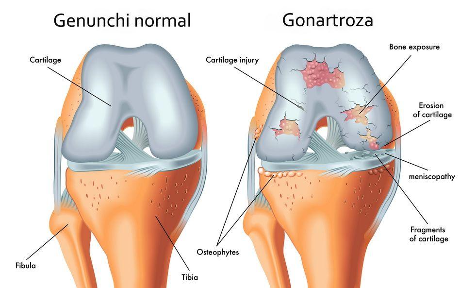 artroza 3 grade a genunchiului Pret mâna doare articulația decât tratamentul