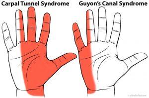 cauzele edemului măduvei osoase a articulației genunchiului