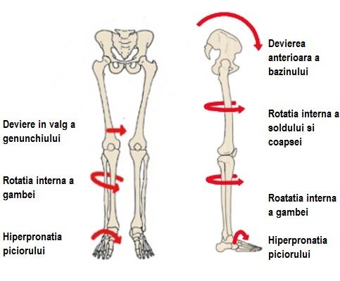 durere în articulațiile piciorului cu picioarele plate durere lângă articulația umărului mâinii stângi