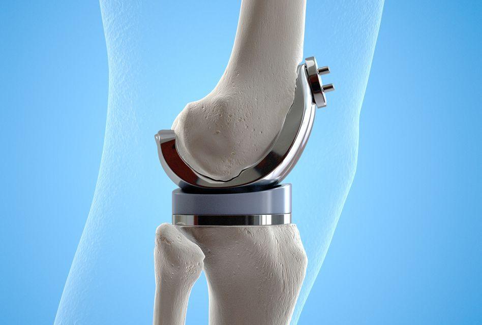 tratament cu sodă pentru dureri de genunchi