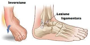 modul de calmare a durerilor articulare severe preparate care conțin condroitină și glucozamină Preț