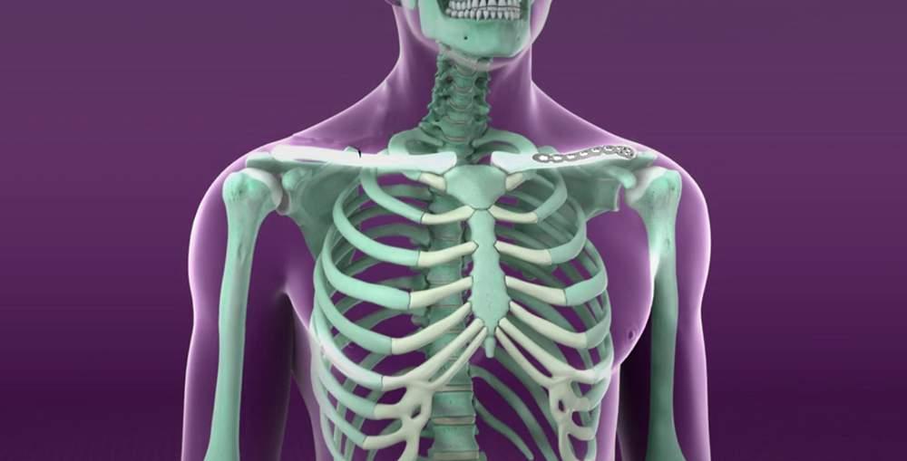 face clic pe durerea articulațiilor șoldului