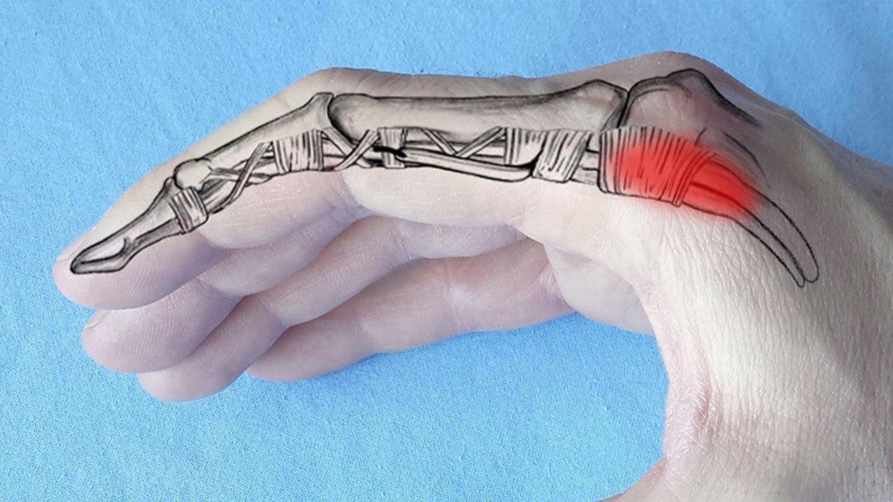 durere și roșeață a articulației degetului mare