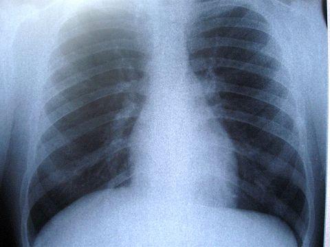 dureri articulare de cancer pulmonar de ce au rănit articulațiile la un adolescent