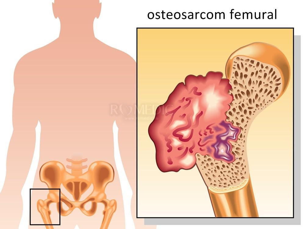 exacerbarea durerii la nivelul articulațiilor șoldului