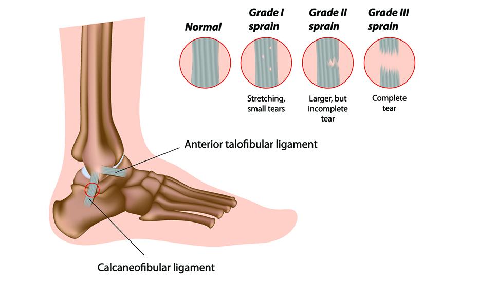 artroza deformantă eficientă a genunchiului tratamentul nervului articulației cotului