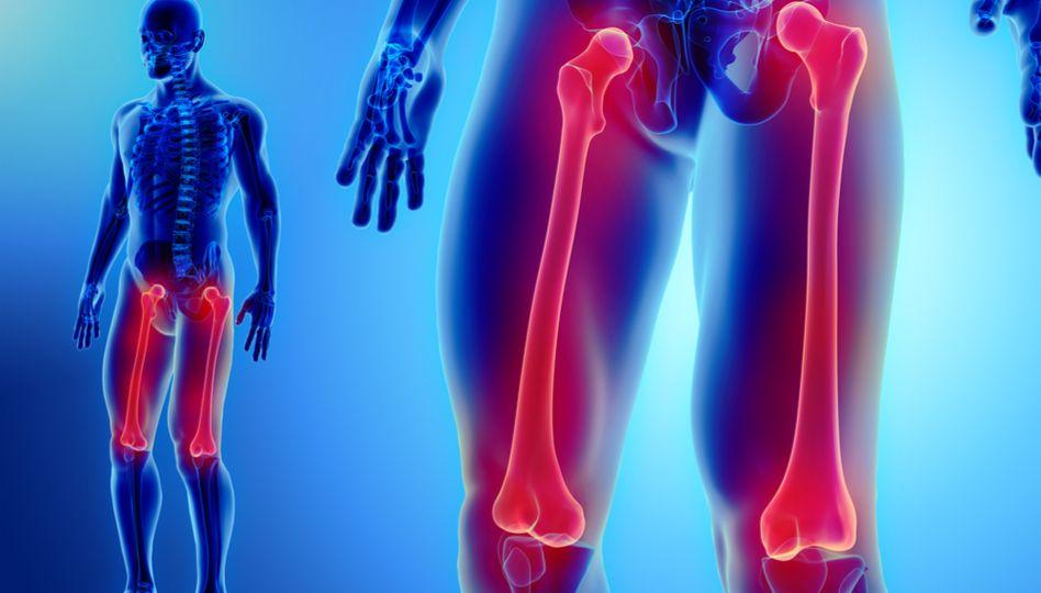 metoda de tratament a fracturilor de șold