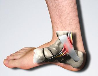 medicamente pentru tratamentul blocajelor articulare articulațiile genunchiului doare la 30 de ani