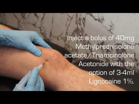 antiinflamatoare pentru articulațiile don tratați articulațiile cu urina