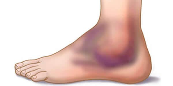 recenzii pentru tratamentul artrozei articulare ulnar tratamente pentru artroză