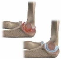 rețetele durerii articulațiilor care este deteriorarea meniscului în articulația genunchiului