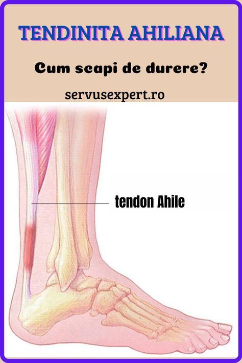 când articulația doare peste călcâie artroza este mai bună glucozamină sau condroitină