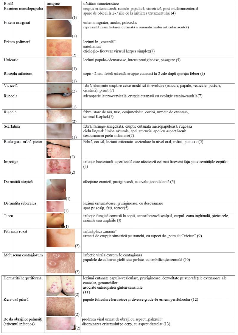 simptome de artroză a articulațiilor mâinilor