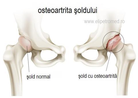 pastile pentru tratamentul artrozei la genunchi dureri de umăr persistente