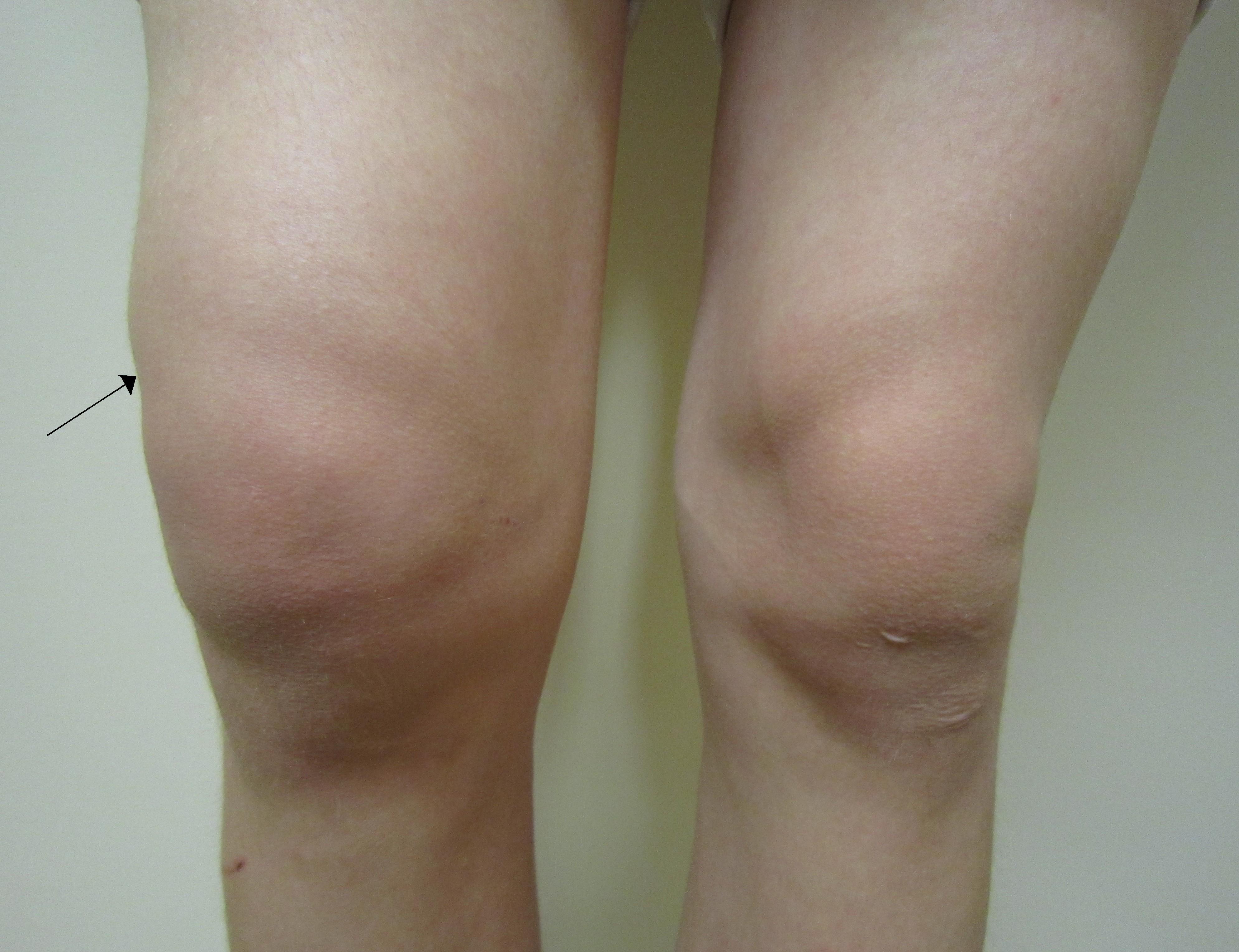 dureri articulare în timpul gua stadii de artroză articulară