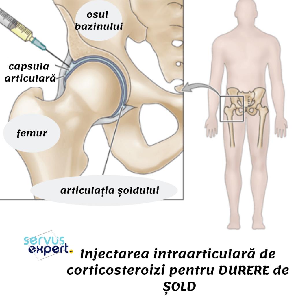 tratament de degenerare articulară tratamentul periartritei articulațiilor picioarelor
