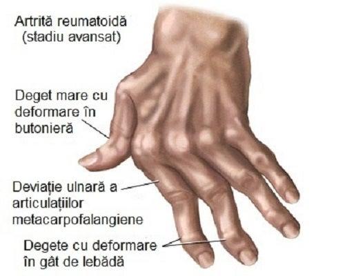 după băut  articulațiile mâinilor doare)