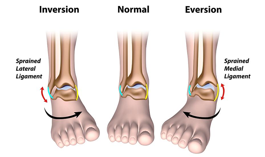 unghiile entorsă articulară genunchiul dă clic și doare