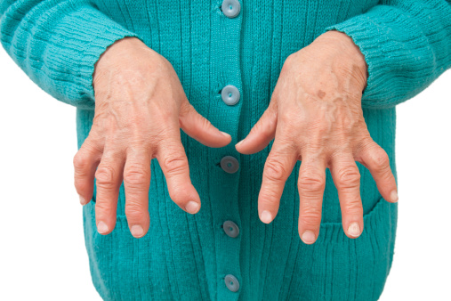 perioada de tratament pentru artroză