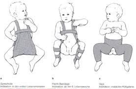 totul despre alăptarea durerilor articulare inflamația bursitei genunchiului