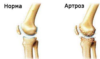 artrita artroza medicației articulației genunchiului