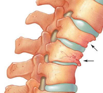 Articulația șoldului și durerea inferioară a spatelui deteriorarea ligamentului cruciat anterior al articulației genunchiului drept
