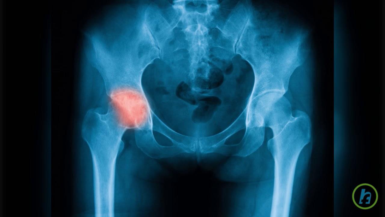 doare articulația șoldului și picioarelor începe tratamentul pentru displazia de șold