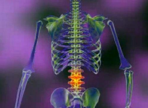 tratamentul solidol articular dureri pline de durere la genunchi