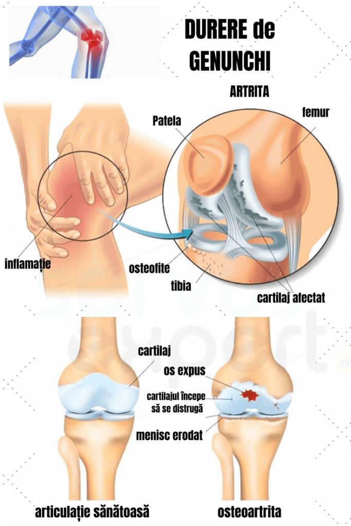dureri la genunchi și articulație