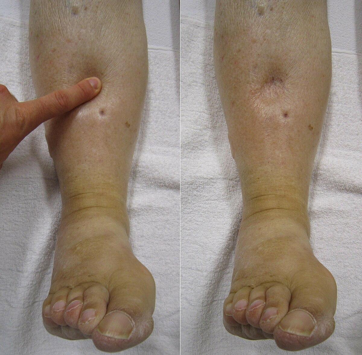 boala articulară la adolescenți artroza metode de tratament de gradul II