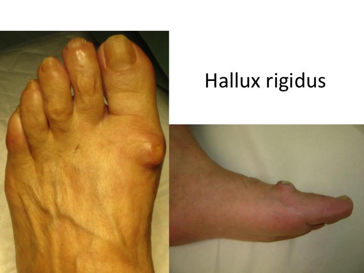 exercițiu de tratament cu artroza piciorului