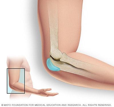 vegetarianismul durerii articulare tratamentul coxartrozei articulației șoldului la 2 grade