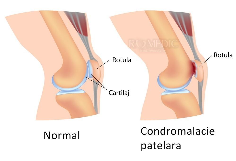 boala de întindere articulară rețete de artroză la genunchi și tratament