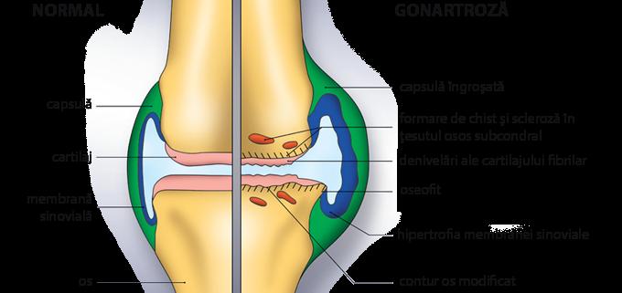 pantofi articulația genunchiului unguent pentru durere în articulația gâtului femural