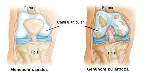 durere constantă în articulația mâinii apasarea bancului de dureri articulare la nivelul umarului