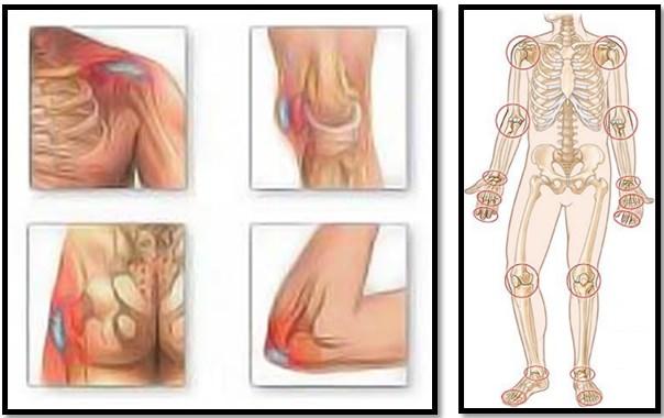 articulațiile și mușchii întregului corp doare medicamente condroprotectoare pentru artroza articulară