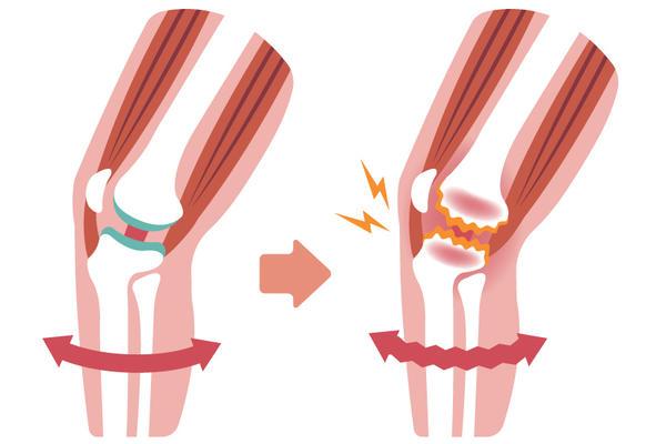 gonartroza 4 grade ale tratamentului articulației genunchiului artroza mâinilor stadiului inițial de tratament