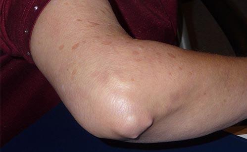 artrita cronica