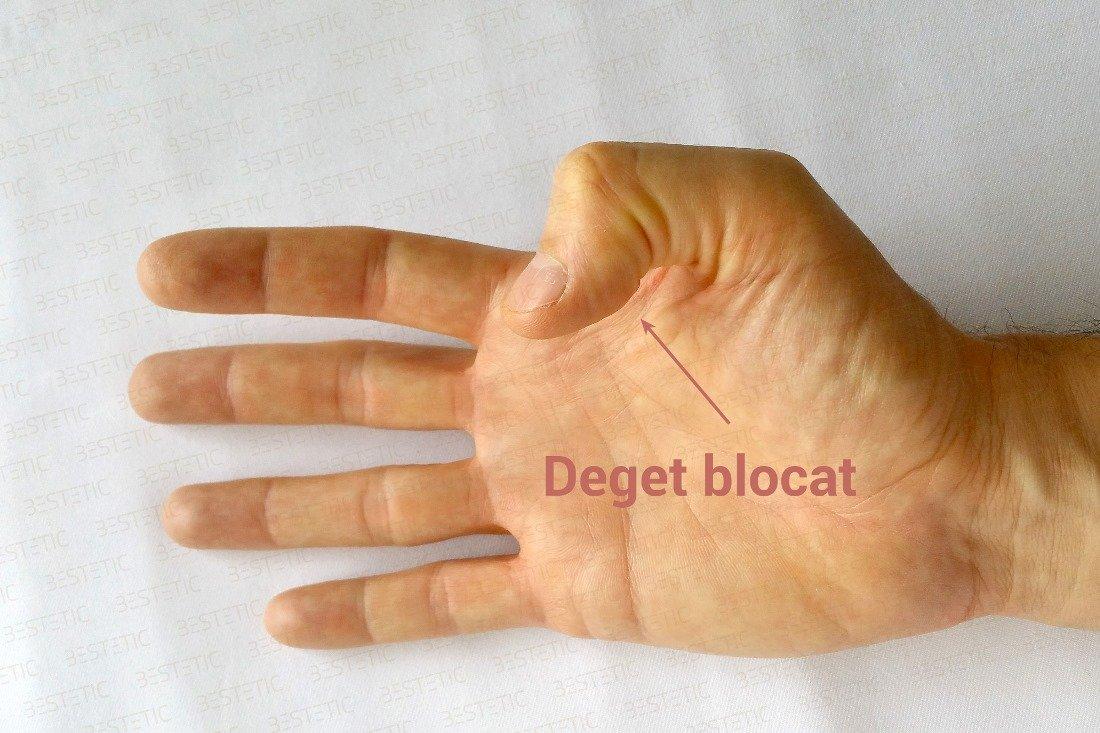 tratament articulatie mana)